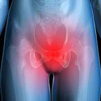 pelvic-girdle-pain
